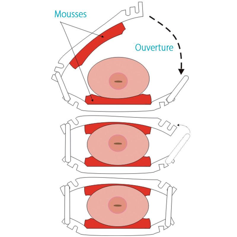 Positionnement de la pince Stop Uri sur le pénis